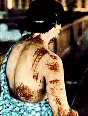 Kvinnans hud är bränd av den kimono hon bar vid atombombningen